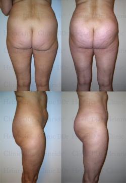 Fettabsaugung mit Mikrokanülen an Oberbauch, Unterbauch, Hüften, Gesäß, Außenschenkeln und Dellenkorrektur