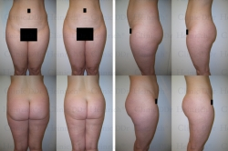 Fettabsaugung mit Mikrokanülen an Oberbauch, Unterbauch und Hüften
