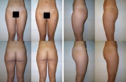 Fettabsaugung mit Mikrokanülen an Taille, Hüften, Gesäß, Außenschenkeln und Innenschenkeln