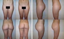 Fettabsaugung mit Mikrokanülen an Gesäß und Außenschenkeln