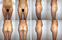Fettabsaugung mit Mikrokanülen an Bauch, Hüften, Gesäß und Außenschenkeln