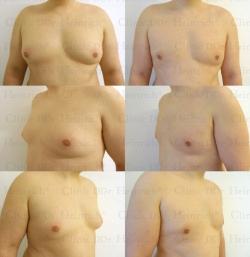 Fettabsaugung mit Mikrokanülen an der Brust