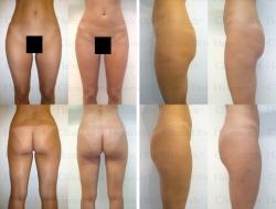 Fettabsaugung mit Mikrokanülen an Hüften, Gesäß, Außenschenkeln und Innenschenkeln